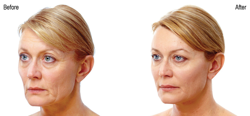 a woman before and after Juvederm Voluma Injections | A Liquid Facelift | 3 Kinds of Injections to Make You Look Like the Very Best You! | Masterpiece Skin Restoration