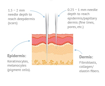 Why Micro Needling Is Better Masterpiece Skin Restoration