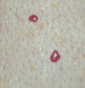 raised cherry angiomas that look like little red spots