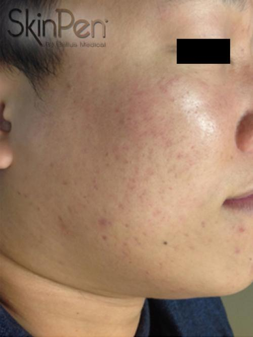 Acne scars after SkinPen micro-needling