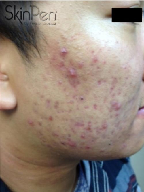 Acne scars before SkinPen micro-needling
