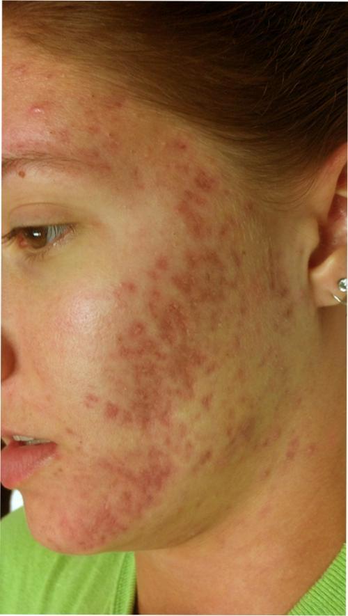 Acne scars before SkinPen micro-needling