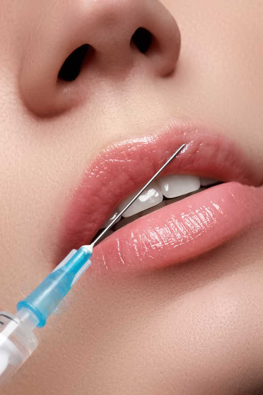 beautiful lips getting hyaluronic acid injections | How Juvederm and Hyaluronic Acid Fillers Add Volume and Soften Lines | Masterpiece Skin Restoration