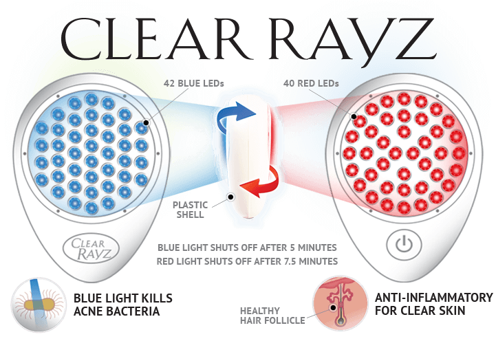 How the Clear Rayz by Baby Quasar Works | 17 of the Best Ways to Treat Adult Acne! | Masterpiece Skin Restoration