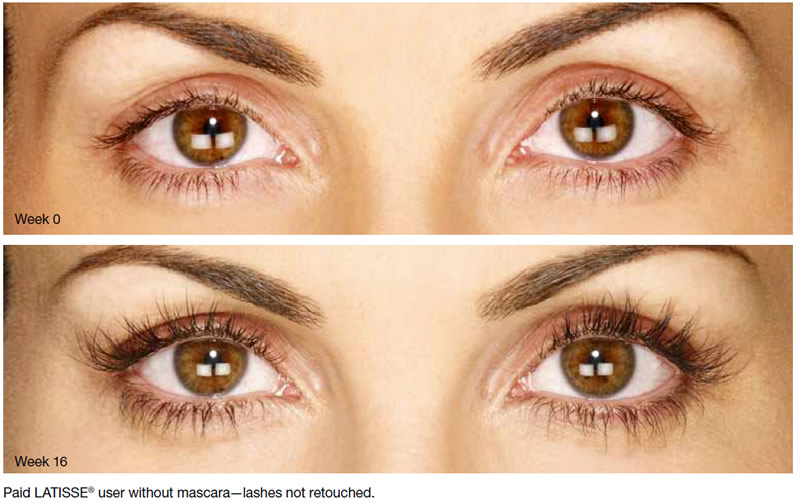Latisse Before and after pictures | Lash Extensions & Latisse,for Thinning Lashes & Brows | Masterpiece Skin Restoration