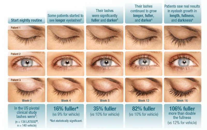 chart of lash growth over time with Latisse | Got Thinning Lashes & Brows? Lash Extensions & Latisse Can Give You Statement Eyes! | Masterpiece Skin Restoration