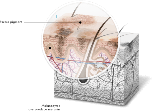 Hyperpigmentation in the layers of skin diagram courtesy of SkinCeuticals