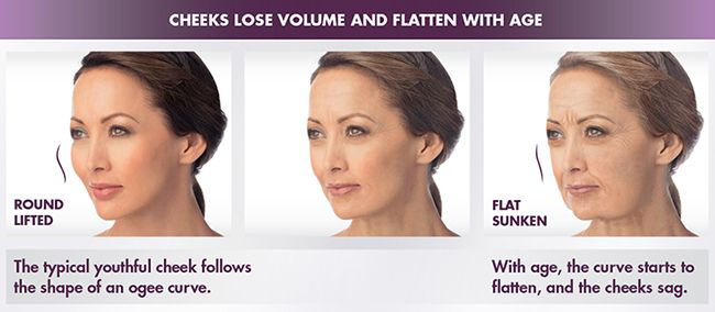 Juvederm Voluma Illustration of How Cheeks Lose Volume With Age | How Voluma Restores Your Cheek Volume | Masterpiece Skin Restoration