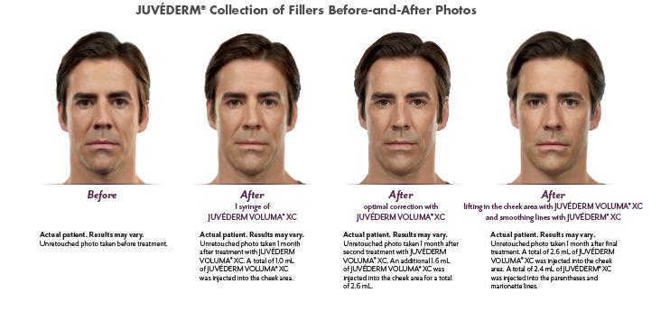 Juvederm Voluma - demonstration of the amount needed and result achieved | How Voluma Restores Your Cheek Volume | Masterpiece Skin Restoration
