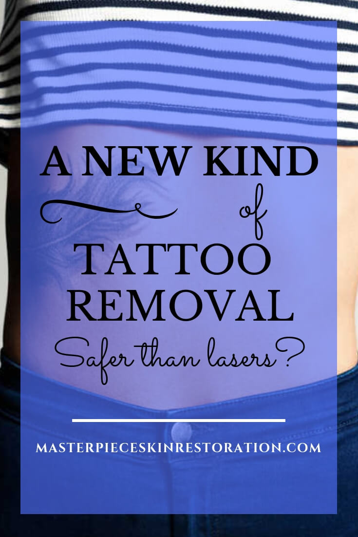 "Woman's torso with a feather tattoo and blue text overlay, ""A New Type of Tattoo Removal 
