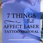 """Man on skateboard with tattoo and blue text overlay, """"7 Things That Affect Laser Tattoo Removal 
