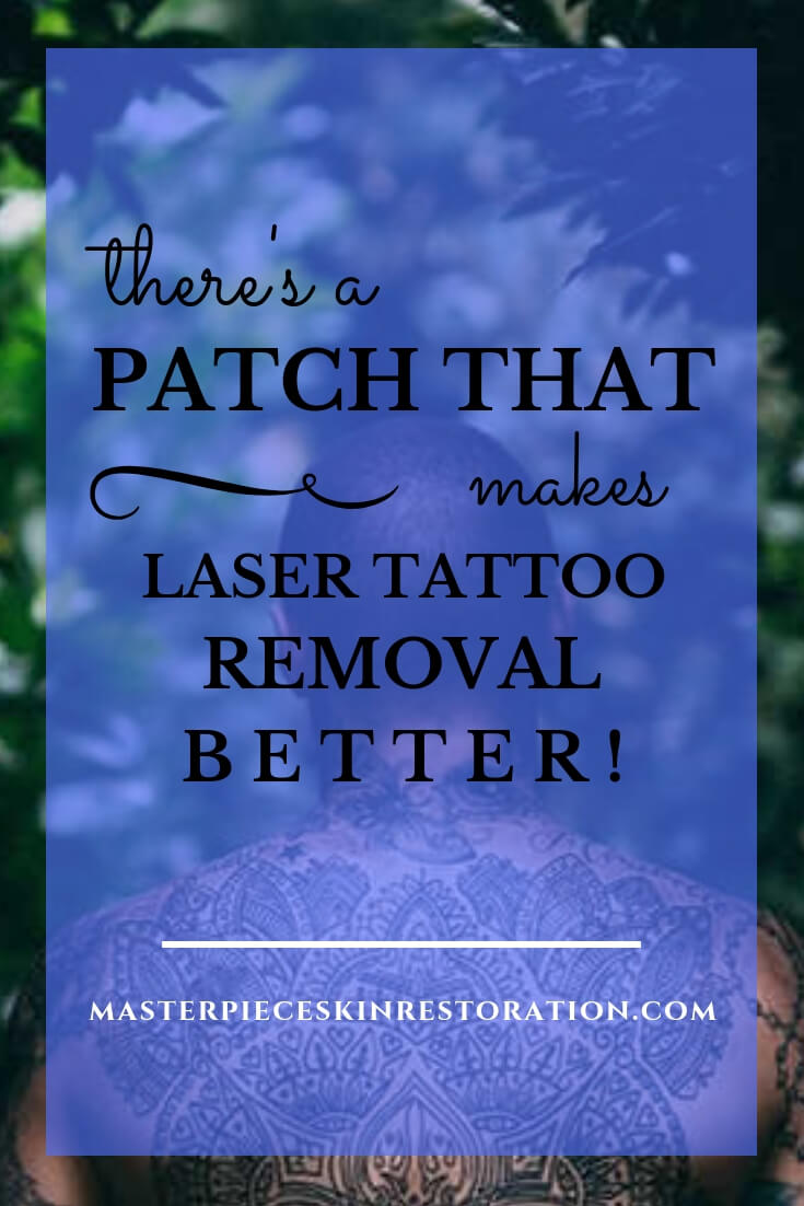 "Man with beautiful tattoo on his back and blue text overlay, ""There's a Patch That Makes Laser Tattoo Removal Better! 