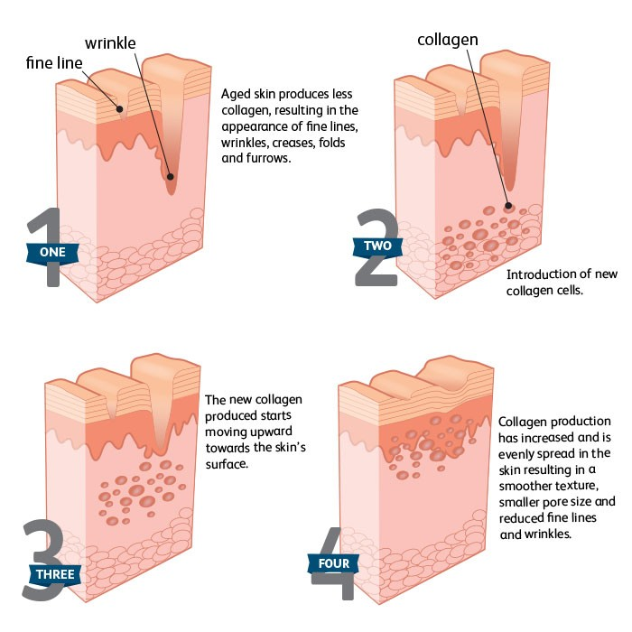 collagen production infographic