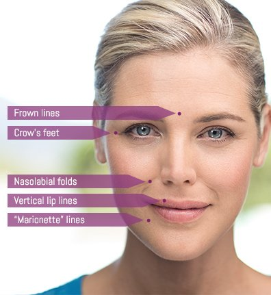Closeup of woman's face with arrows pointing to and naming the different kinds of wrinkles