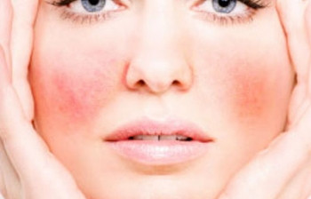 Woman with red spider veins on her face | 5 Ways to Treat Spider Veins of the Face | Masterpiece Skin Restoration