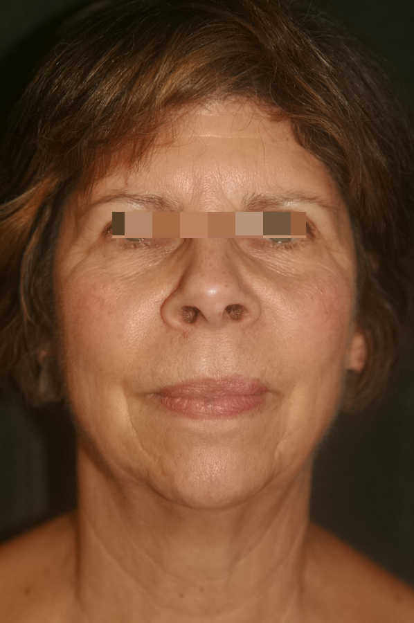 woman before medical micro-needling treatment, forward facing   Micro-Needling Results   Pictures of Our Patient, Jane   Masterpiece Skin Restoration