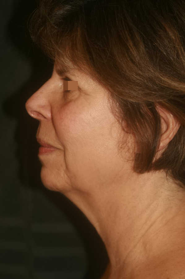 woman before medical micro-needling treatment, profile | Micro-Needling Results | Pictures of Our Patient, Jane | Masterpiece Skin Restoration