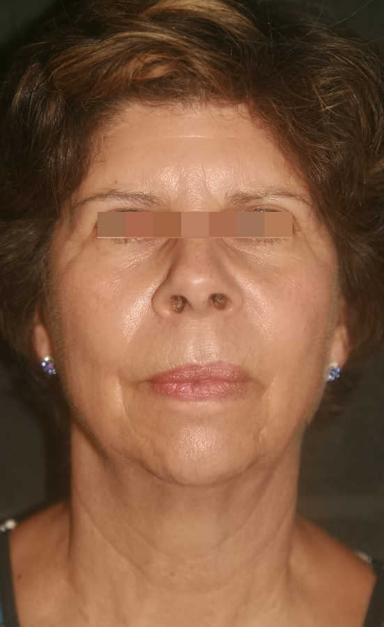 woman's micro-needling results after 1 treatment, forward facing   Micro-Needling Results   Pictures of Our Patient, Jane   Masterpiece Skin Restoration