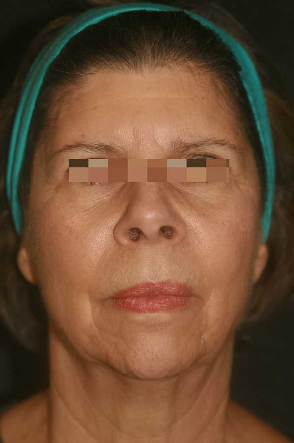 woman's micro-needling results after 2 treatments, forward facing | Micro-Needling Results | Pictures of Our Patient, Jane | Masterpiece Skin Restoration