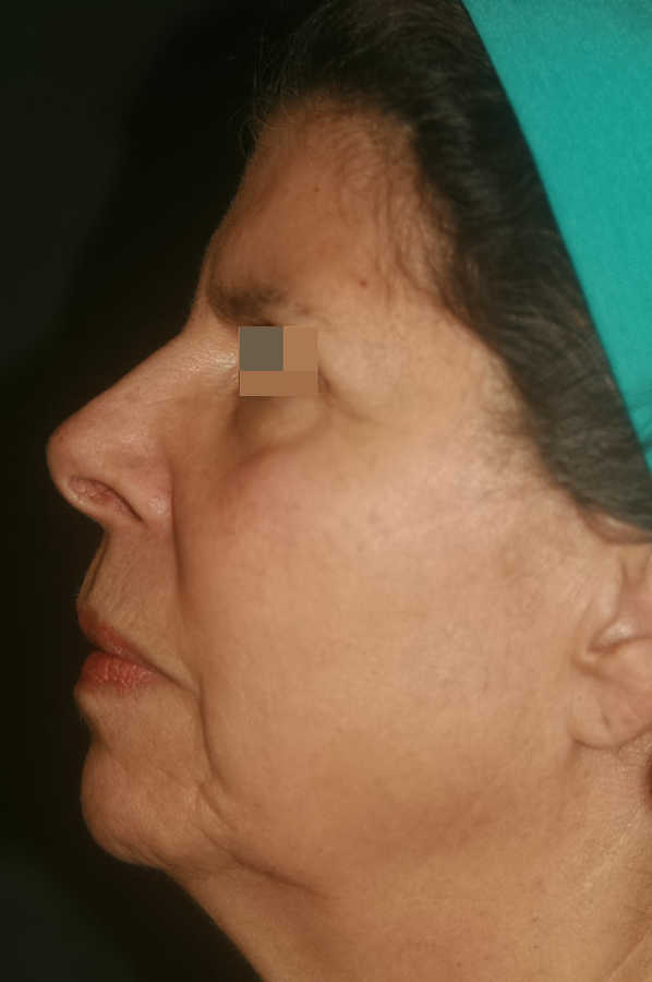 woman's micro-needling results after 2 treatments, profile | Micro-Needling Results | Pictures of Our Patient, Jane | Masterpiece Skin Restoration