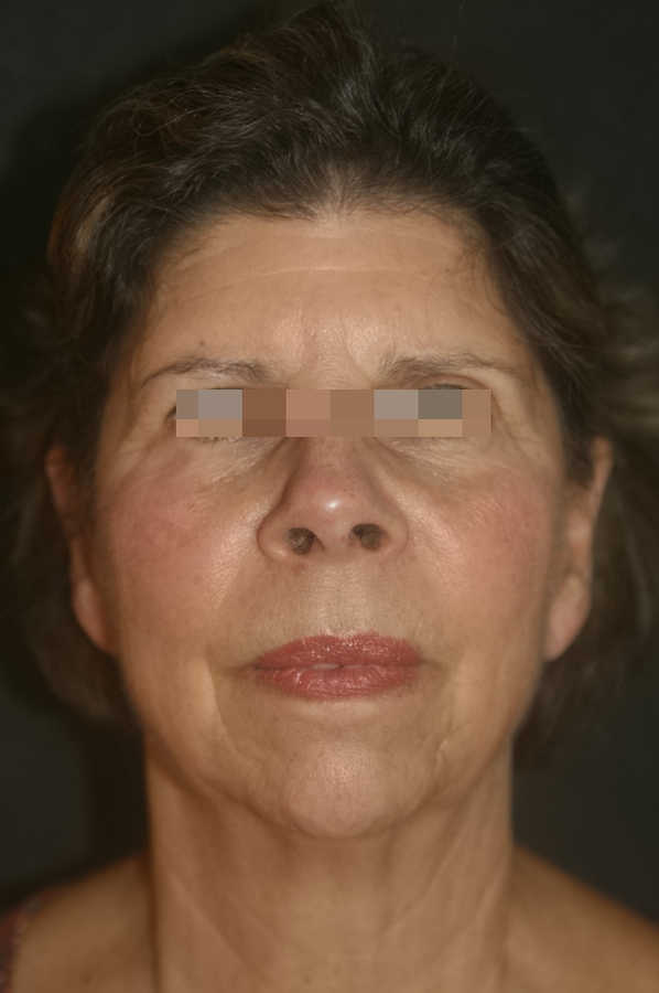 woman's micro-needling results after 3 treatments, forward facing   Micro-Needling Results   Pictures of Our Patient, Jane   Masterpiece Skin Restoration