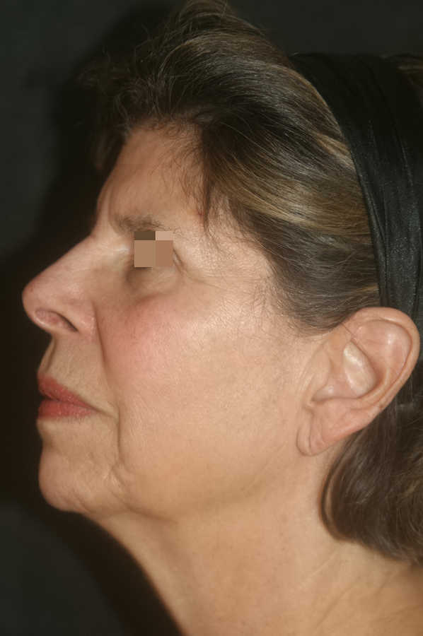 woman's micro-needling results after 3 treatments, profile | Micro-Needling Results | Pictures of Our Patient, Jane | Masterpiece Skin Restoration