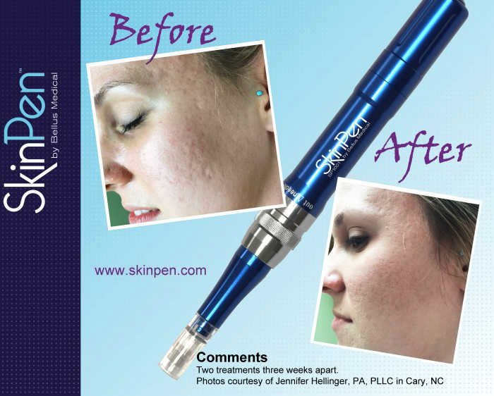 Images of acne scars before and after micro-needling with SkinPen
