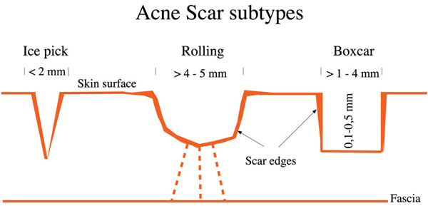 Diagram of the kinds of acne scars