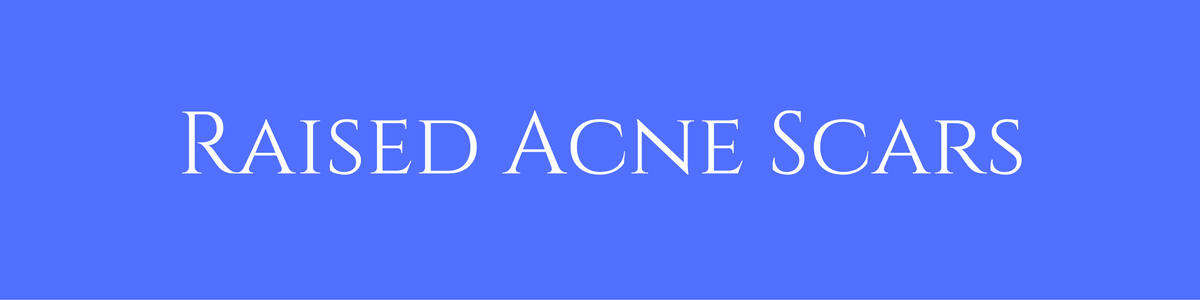 Raised Acne Scars | Masterpiece Skin Restoraiton