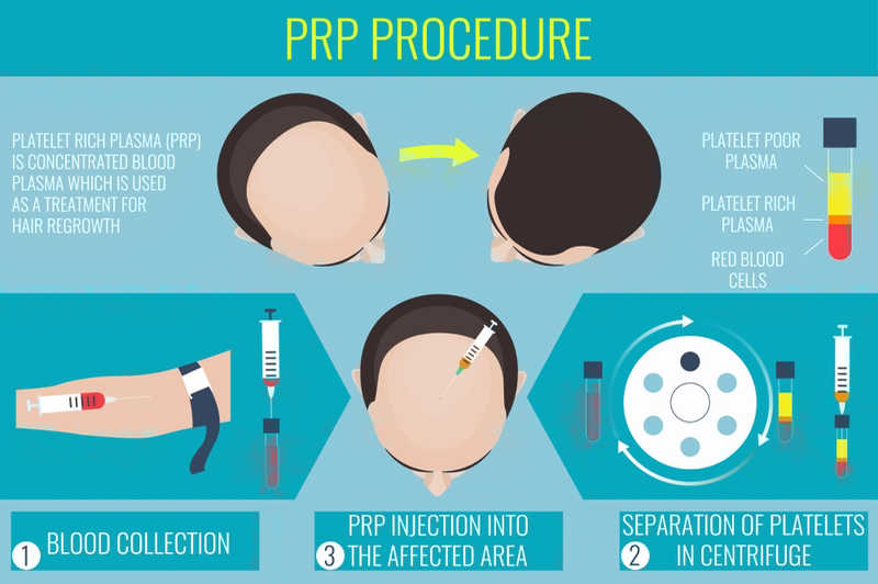 PRP Procedure Infographic on hair regrowth
