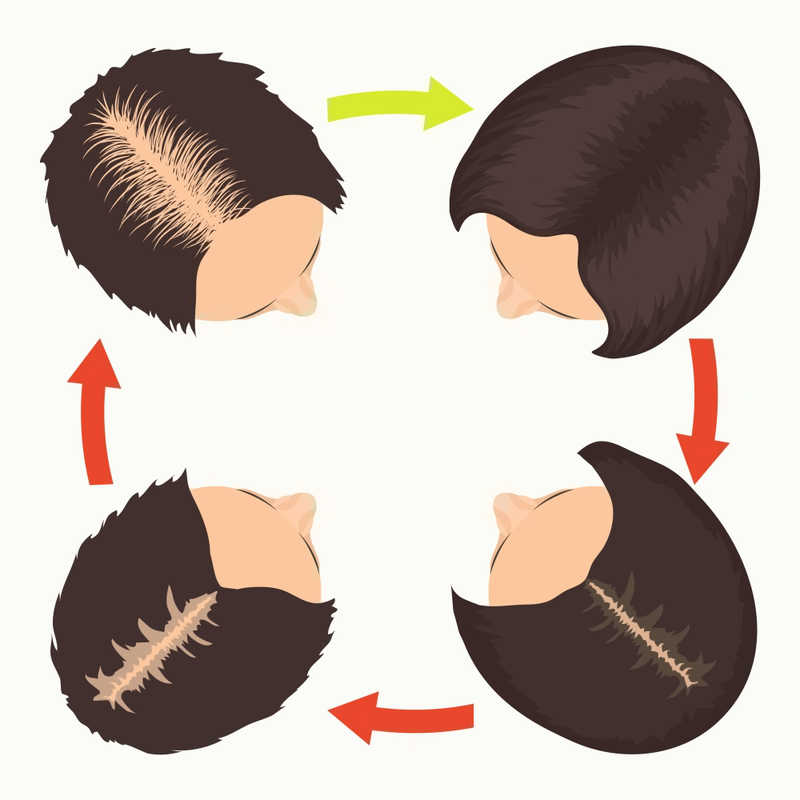circle of hair loss diagram