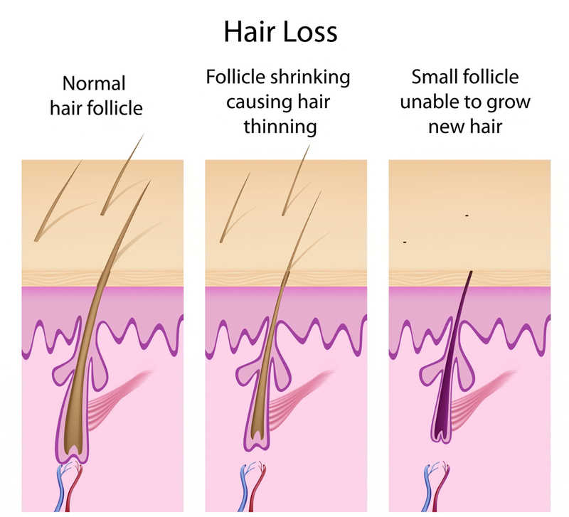 hair miniaturization in hair loss diagram