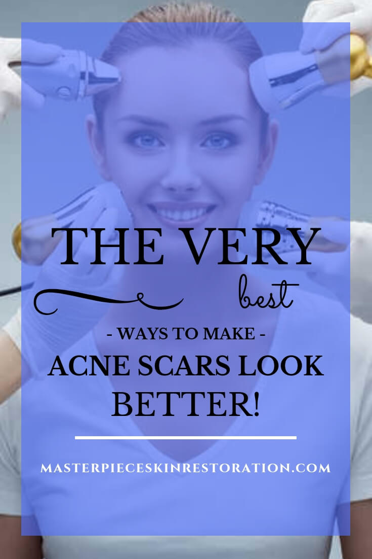 """smiling woman getting different kinds of skin rejuvenation treatments applied to her face with blue text overlay, """"The Very Best Ways to Make Acne Scars Look Better! 
