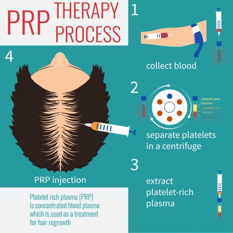 PRP Therapy Process Diagram