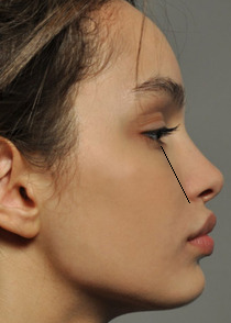 closeup of young woman with forward growth profile of jaw