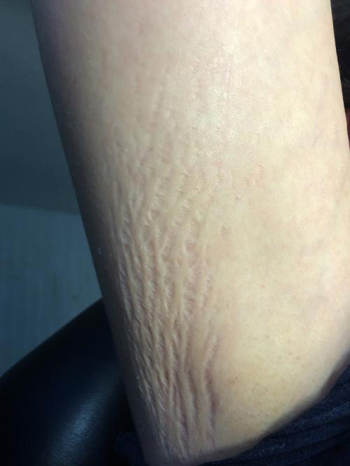 stretch marks before SkinPen Micro-Needling
