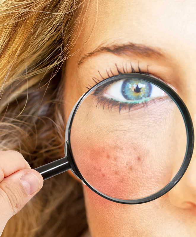 Woman with rosacea on her cheek holding a magnifying glass