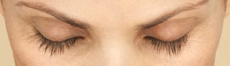 woman's lashes after Latisse