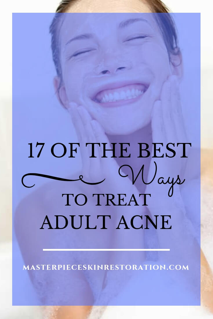 "Woman washing face & smiling with text overlay, ""17 of the Best Ways to Treat Adult Acne 