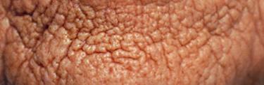 sugar damages skin