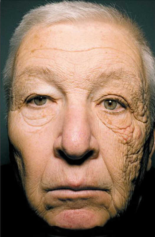 Truck driver with sun damage | Beauty Tips for Skin | Masterpiece Skin Restoration