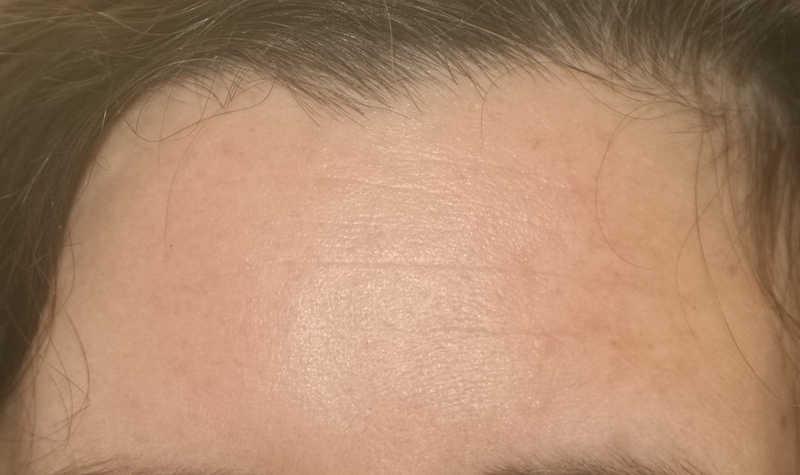 my forehead before erasa |