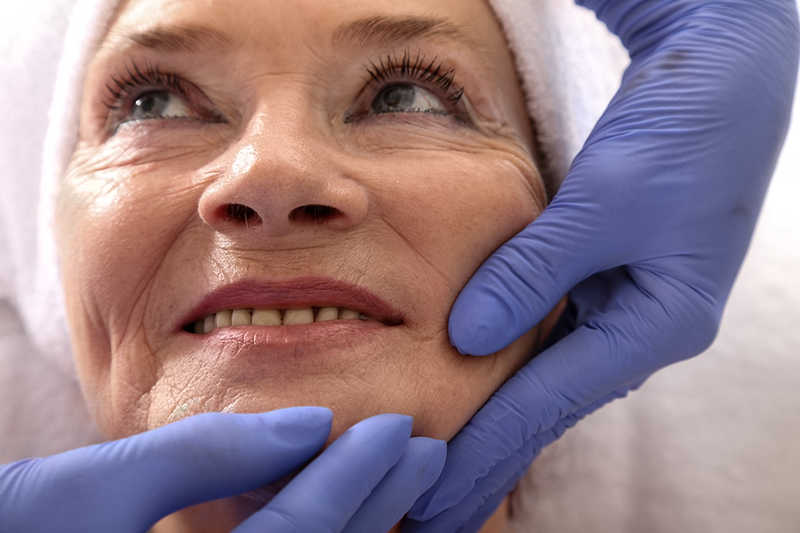 beautiful mature woman being evaluated for a facelift, blue gloved hands touching face