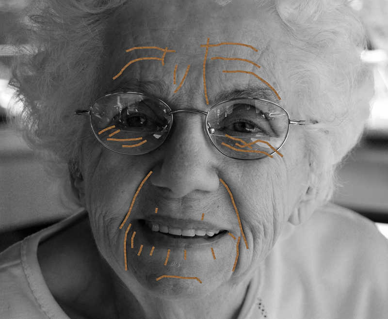Expression lines on a smiling mature woman | How the Juverest Pillow Helps You Avoid Sleep Wrinkles | Masterpiece Skin Restoration