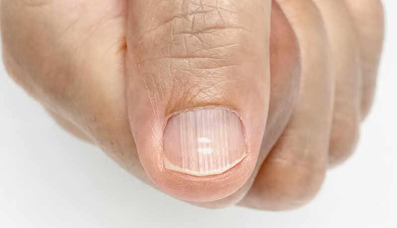 closeup of man's thumb with fingernail ridges