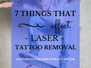 7 Things That Affect Laser Tattoo Removal | Masterpiece Skin Restoration