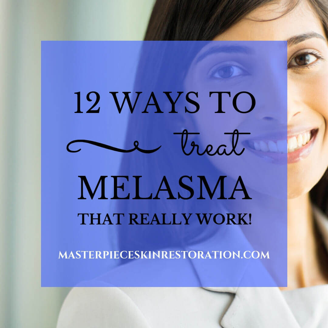 "Dark skinned woman smiling in business suit with blue text overlay, ""12 Ways to Treat Melasma That Really Work! 
