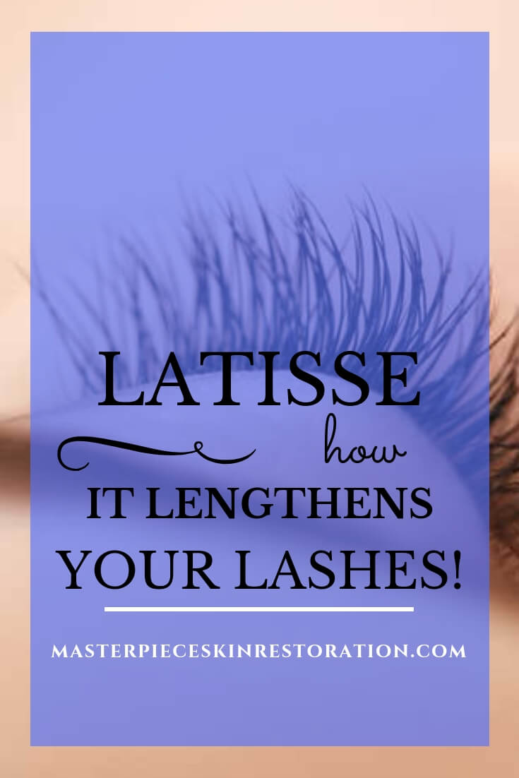 """Closeup of beautiful, long lashes from above with blue text overlay, """"How Latisse Lengthens Your Lashes 