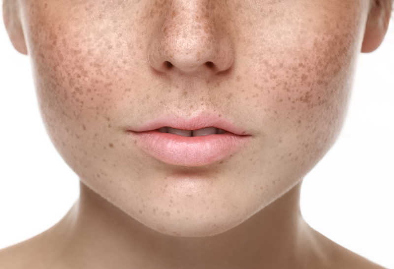 closeup of lower half of young woman's face with freckles | Wrinkles | 6 Great Ways to Treat Them! | Masterpiece Skin Restoration