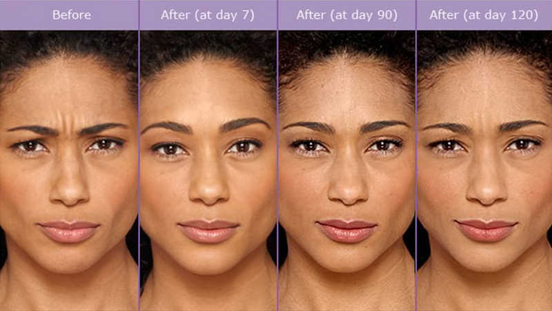woman with beautiful dark skin, Before and After Botox | Botox | What to Expect With Your Injections | Masterpiece Skin Restoration